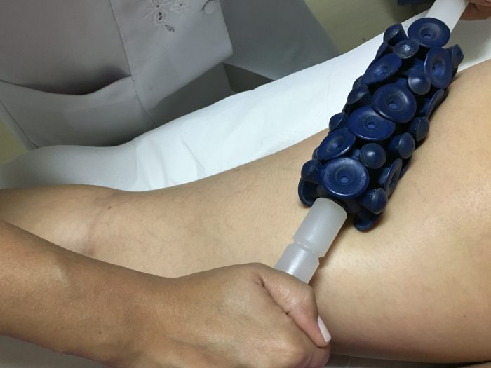 como-funciona-heccus-e-massagem-modeladora-img-5